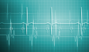 Heartbeat-variability-analysis